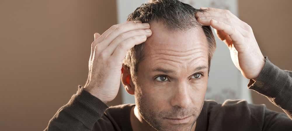 علت نازک شدن موی سر