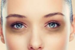 سیاهی دور چشم و روش هایی برای راه درمان
