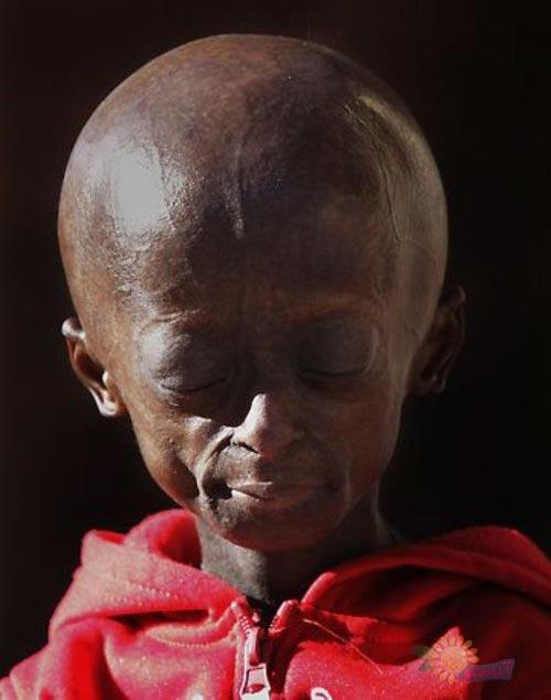 У 12-летней девочки по имени Онтламетсе Фаласте осталось всего пару лет жиз