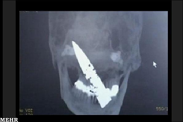 عکس هایی از چاقو ، قیچی و میخ در جمجمه!