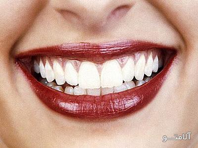 دندونای سفید