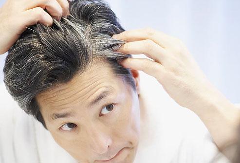 hair-conditions-دلایل ریزش مو و راه درمان آن