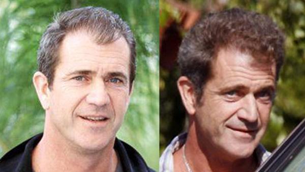 Mel-Gibson-Hair-Transplant