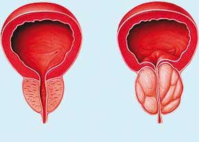 رابطه تستوسترون و سرطان پروستات