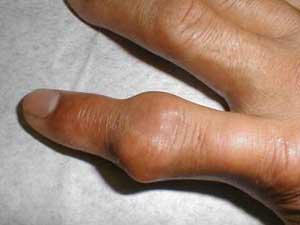 بیماری نقرس چیست؟ همه چیز در مورد نقرس و راههای درمان آن