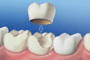 مضرات روکش دندان