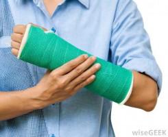 شکستگی استخوان broken-bones