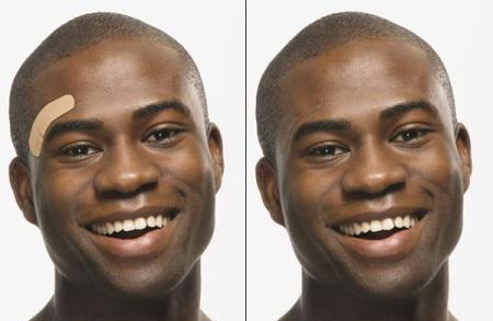 چسب زخمی که تغییر رنگ می کند + عکس