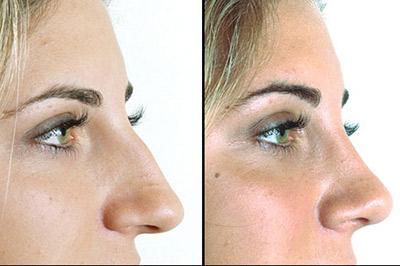 بینی قبل و بعد از عمل جراحی زیبایی