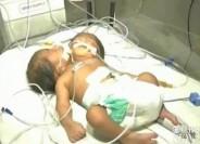 پسر دو سر جراحی میشود+عکس