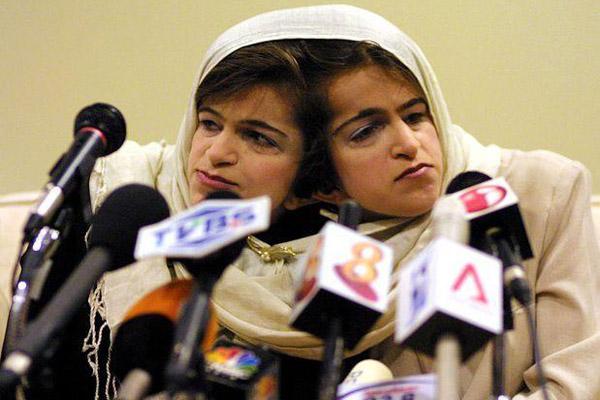 پروفایل مخصوص دوقلوها افسانه دوقلوهای به هم چسبیده ایرانی