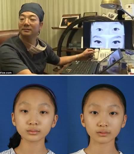 عجیب ترین جراحی های زیبایی جهان,بزرگ کردن چشم