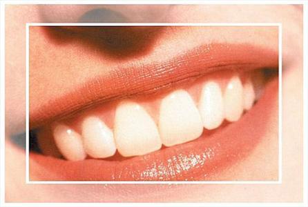 یکی از علت های زرد شدن دندان