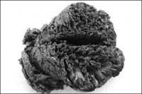 کشف مغز 4 هزار ساله انسان در ترکیه