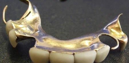 دندان های چرچیل