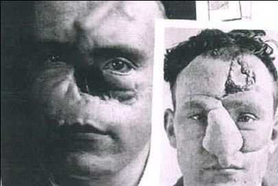 اولین کسی که عمل جراحی بینی رویش انجام شد