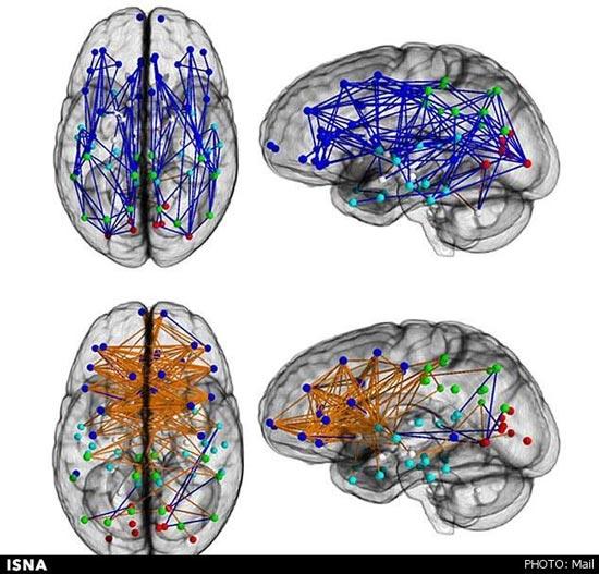 تفاوت مغز مردان و زنان + عکس