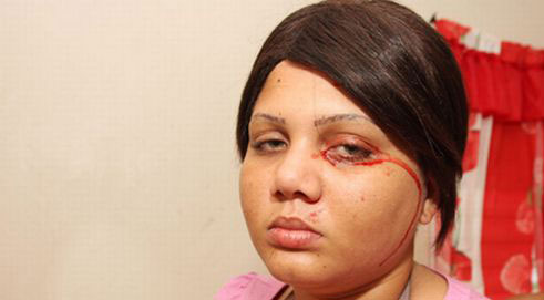 دختری که خون می گرید