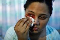 دختری که خون می گرید +عکس