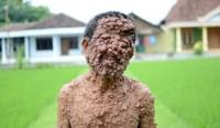 مردی که تمام بدنش تومور است +عکس(+16)