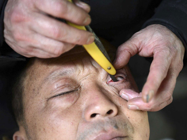 مردم اصلاح چشم را هم تمرین می کنند.