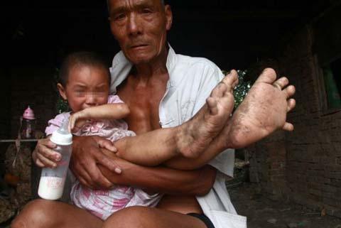 دختری که پاهایش شبیه دستانش است + عکس