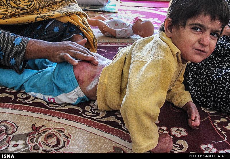 بیماری دردناک کودکان جیرفتی/ عکس