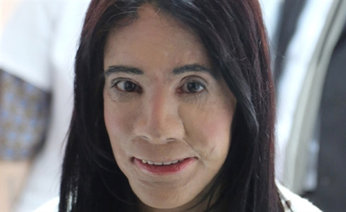 face-transplant-surgery1