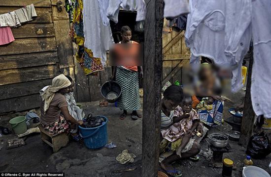 تصاویر تکان دهنده از فقر جهانی