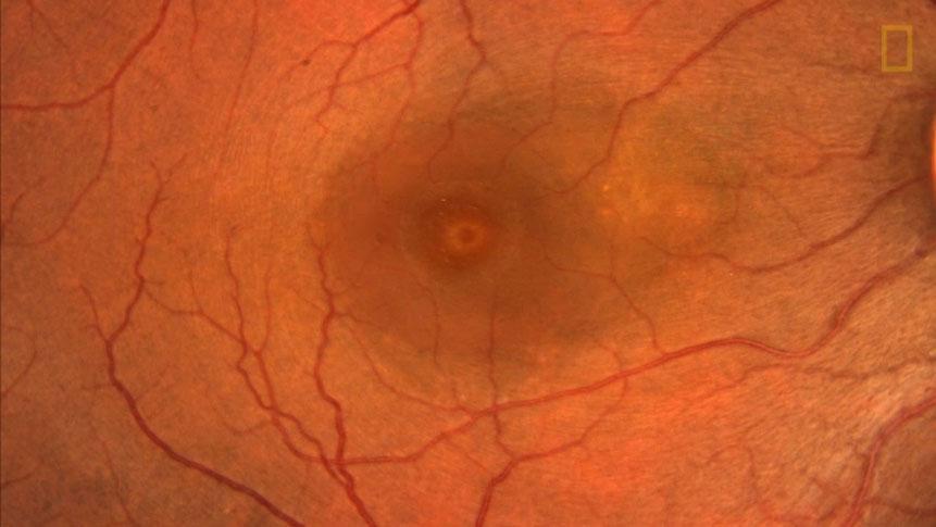 تشخیص درست بیماری از روی چشم ها