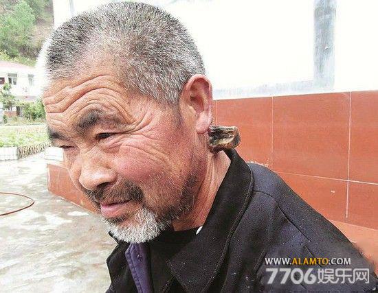 شاخ در گردن مردن چینی