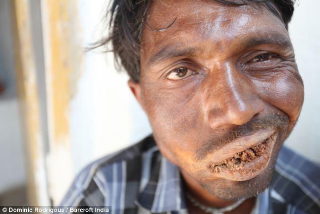 مرد هندی روزی 3 کیلو سنگ میخورد + عکس