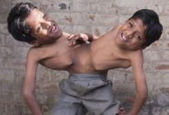 زندگی سخت برادرانی که از کمر متصل هستند +عکس
