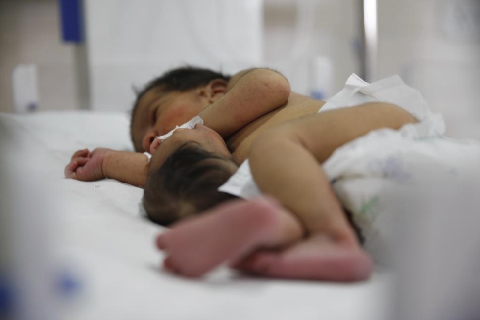 تولد نوزادی با یک سر اضافی روی شکمش!/ عکس