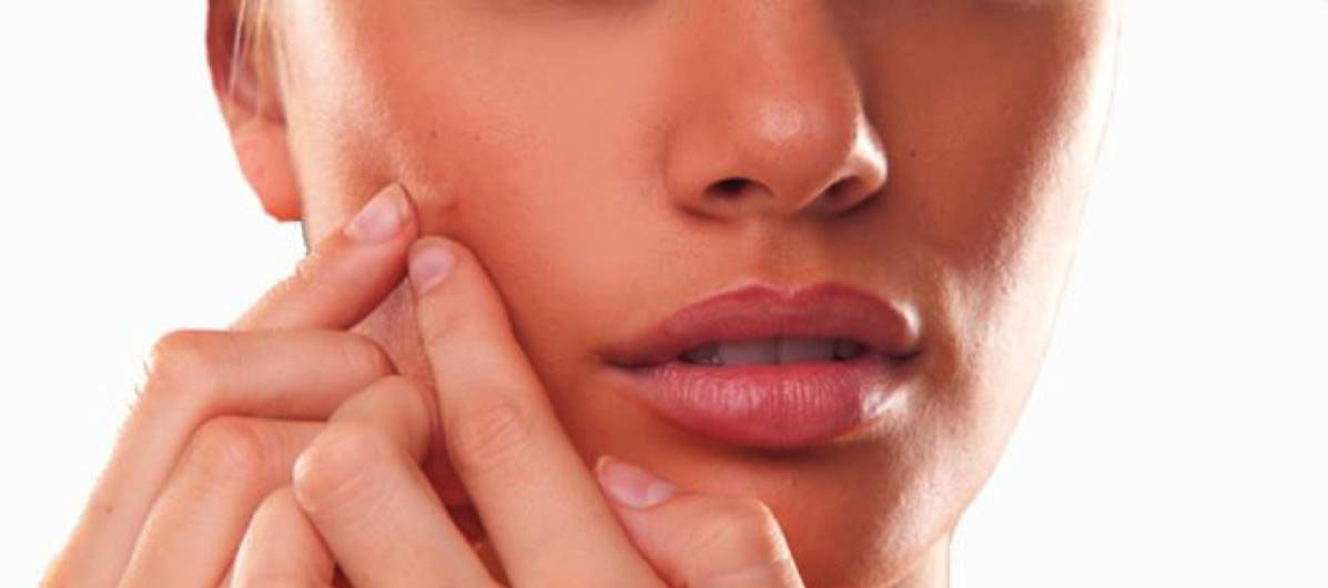 acne-treatment-رژیم غذایی ضد آکنه و جوش صورت