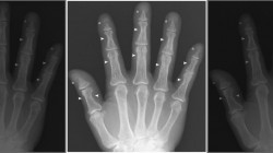 مردی که انگشتان دستش آب میرود + عکس