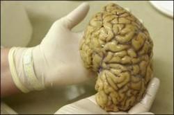 6 باور غلط درباره مغز انسان