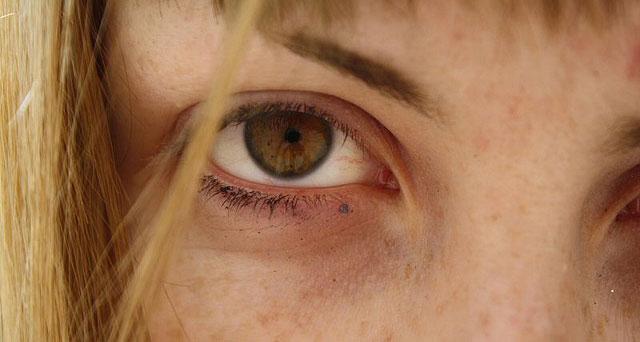 Brown-Spots-on-Skin,درمان لکه های قهوه ای صورت