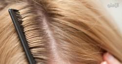 درمان های طبیعی شوره سر