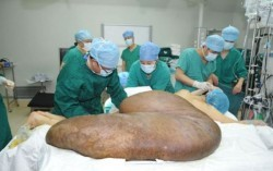 عمل جراحی بزرگترین تومور جهان+عکس