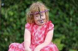 دختری با صورت از هم پاشیده شده +عکس