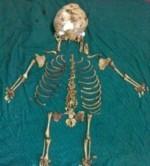 خروج اسکلت نوزاد 36 ساله از بدن زن هندی