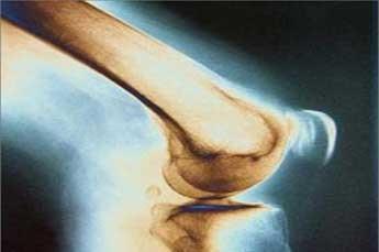 پیشگیری از پوکی استخوان, تقویت استخوان ها