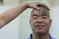 ترمیم جمجمه یک مرد چینی با پرینت سه بعدی