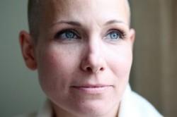 ۹ تمرین علیه یک سرطان زنانه