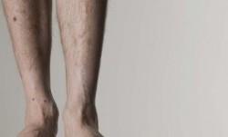 چگونه پاهای لاغر را چاق کنیم؟