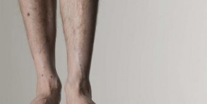 چاق کردن پاها