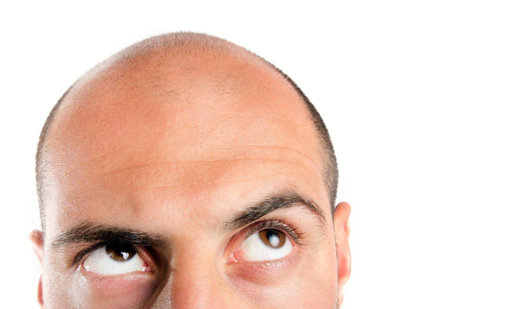 علل اصلی ريزش مو