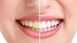 راه داشتن دندان هایی سفید