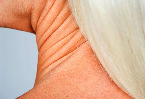 درمان های افتادگی پوست گردن